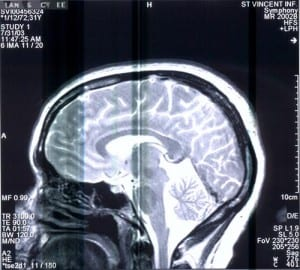 Scan of a brain showing possible effects of brain injury