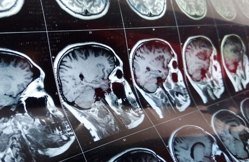 Consecutive MRI images show a brain scan.