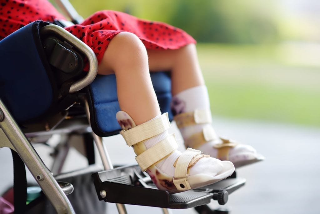 Disabled girl sitting in wheelchair, with close-up of leg equipment